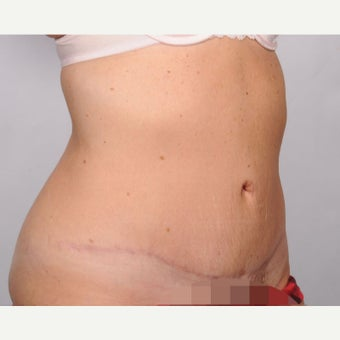 No Drain Tummy Tuck after 2486329