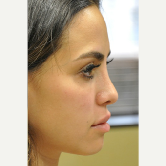 25-34 year old woman treated with Restylane after 3182034