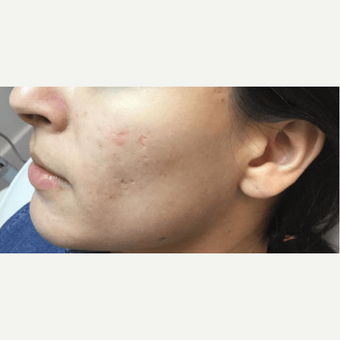 25-34 year old woman treated with Microneedling before 2894074