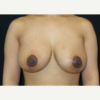 35-44 year old woman treated with Breast Lift with Implants after 3305235