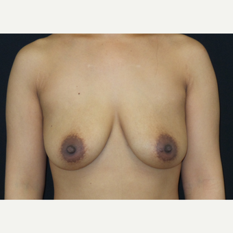 35-44 year old woman treated with Breast Lift with Implants before 3305235