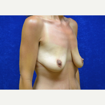35-44 year old woman treated with Breast Lift with Implants before 3423516