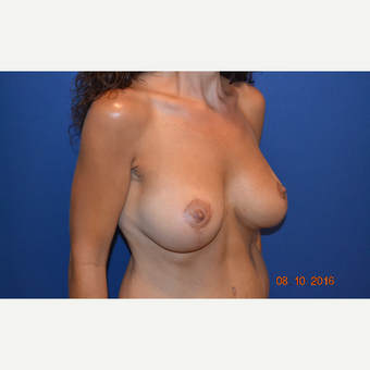 35-44 year old woman treated with Breast Lift with Implants after 3423516