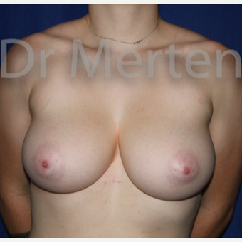 18-24 year old man treated with FTM Chest Masculinization Surgery before 3829023