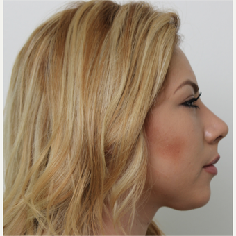18-24 year old woman treated with Rhinoplasty after 3371516