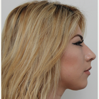 18-24 year old woman treated with Rhinoplasty before 3371516