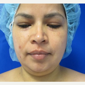 Chin Liposuction before 3141671