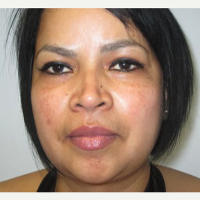 Chin Liposuction after 3141671