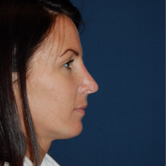 25-34 year old woman treated with Rhinoplasty after 2976880