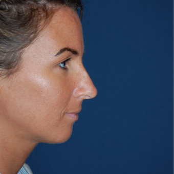 25-34 year old woman treated with Rhinoplasty before 2976880
