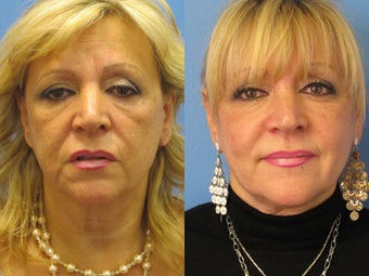 Exilis skin tightening of face
