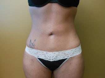 21 year old female, liposuction after 1348882