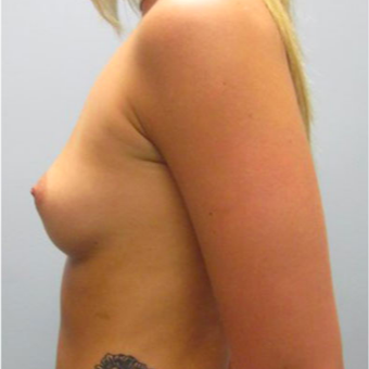 28 year old woman treated with Breast Augmentation before 3467323