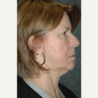 63 year old woman treated with Facelift before 3710755