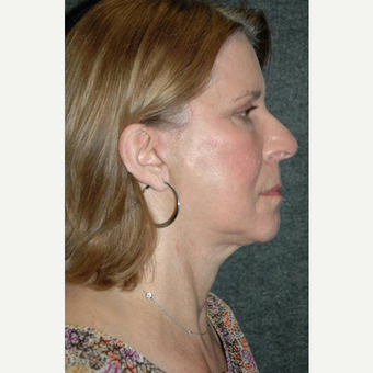 63 year old woman treated with Facelift after 3710755