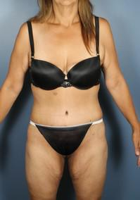 After Weight Loss, Tummy Tuck after 1394244