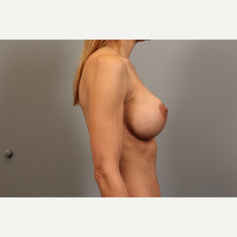 45 year old woman treated with Breast Lift after 2976556