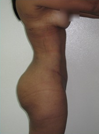 18-24 year old woman treated with Tummy Tuck 1813934