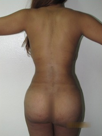 18-24 year old woman treated with Tummy Tuck after 1813934
