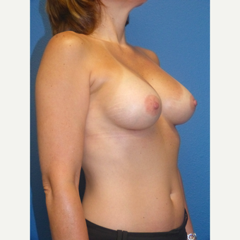 Breast Implants after 3807072