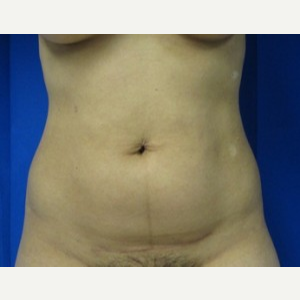 Liposuction before 3094188