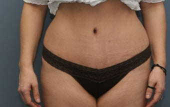 Tummy tuck with lipo of the love handles after 1102526