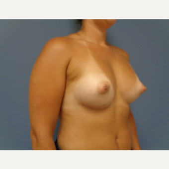 25-34 year old woman treated with Breast Augmentation after 3493652