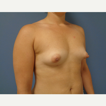 25-34 year old woman treated with Breast Augmentation before 3493652