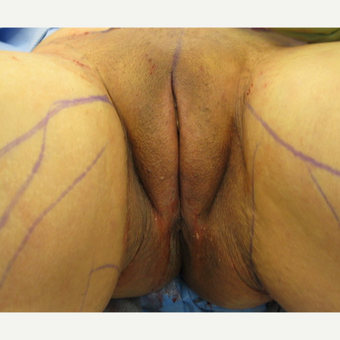 25-34 year old woman treated with Monsplasty after 3697628
