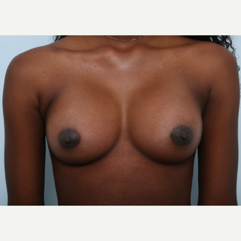 Breast Augmentation after 3460093