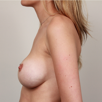 25-34 year old woman treated with Breast Implants before 3075236