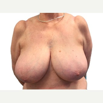 75 and up year old woman treated with Breast Reduction before 2527676