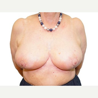 75 and up year old woman treated with Breast Reduction after 2527676