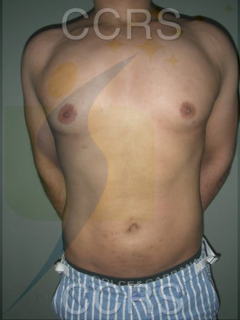 VASER Lipo - 28 yrs. old male (abdomen, back & chest)
