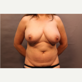 45-54 year old woman treated with Mommy Makeover: breast reduction and tummy tuck before 3005446