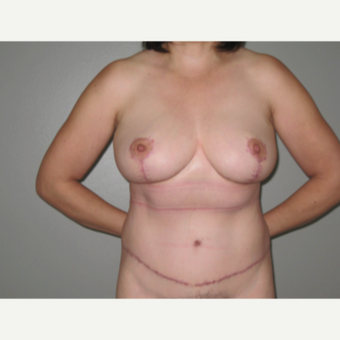 45-54 year old woman treated with Mommy Makeover: breast reduction and tummy tuck after 3005446