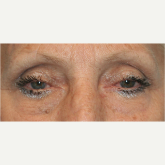 55-64 year old woman treated with Eye Bags Treatment after 3811434