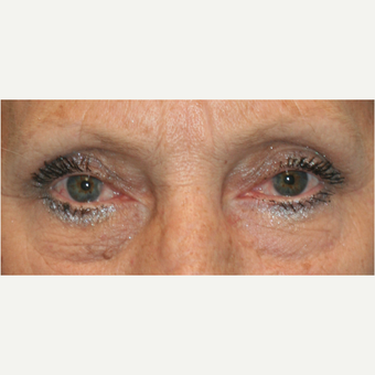 55-64 year old woman treated with Eye Bags Treatment before 3811434
