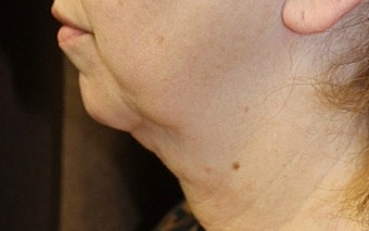 Ultherapy Neck before 1079059