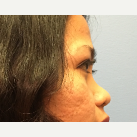 34 year old woman treated with Asian Rhinoplasty before 3036897