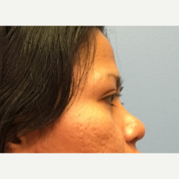 34 year old woman treated with Asian Rhinoplasty after 3036897