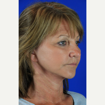 Facelift, Fractional CO2 Laser Skin Resurfacing after 3466263