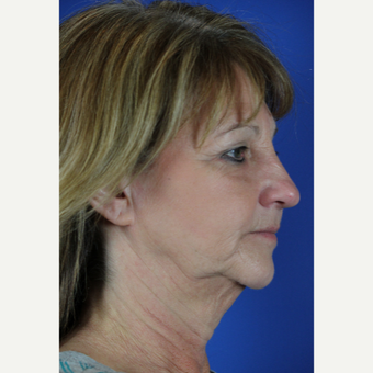 Facelift, Fractional CO2 Laser Skin Resurfacing before 3466263