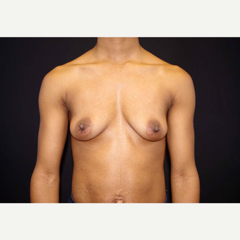 25-34 year old woman treated with Breast Implants before 3439903