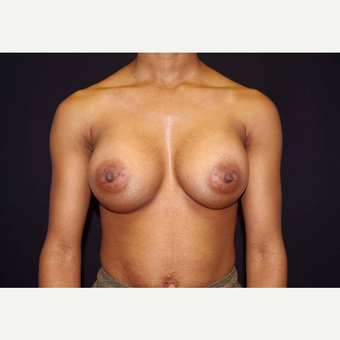 25-34 year old woman treated with Breast Implants after 3439903