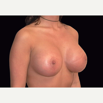 25-34 year old woman treated with Breast Lift with Implants after 3027888