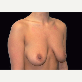 25-34 year old woman treated with Breast Lift with Implants before 3027888