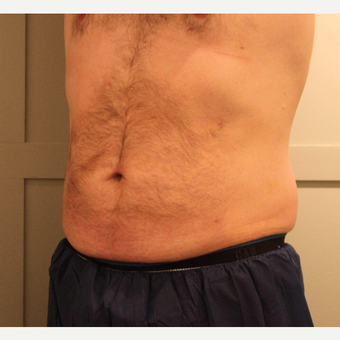 45-54 year old man treated with Liposuction after 3218445