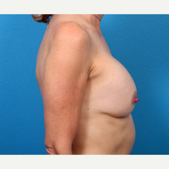 45-54 year old woman treated with Breast Implant Revision before 3366766