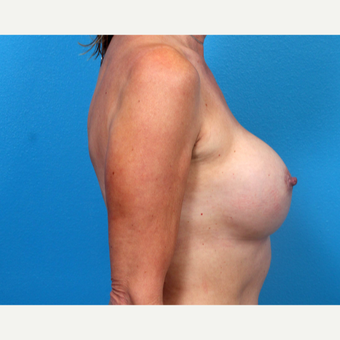 45-54 year old woman treated with Breast Implant Revision after 3366766